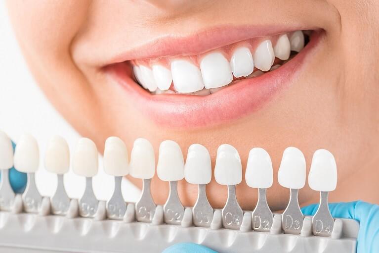 歯の内面からの黄ばみ・着色にはホワイトニングが効果的