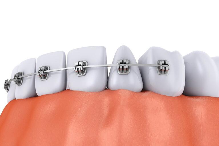 前歯の歯並びだけ治す「部分矯正」