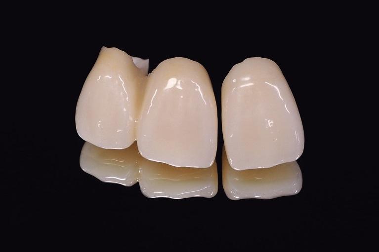 奥歯の治療に最適なのはセラミック治療