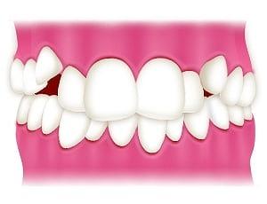 前歯が重なっている・八重歯がある
