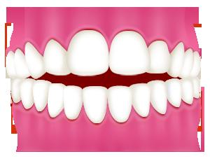 噛み合わせた時に前歯に隙間がある・前歯がかみ合わない