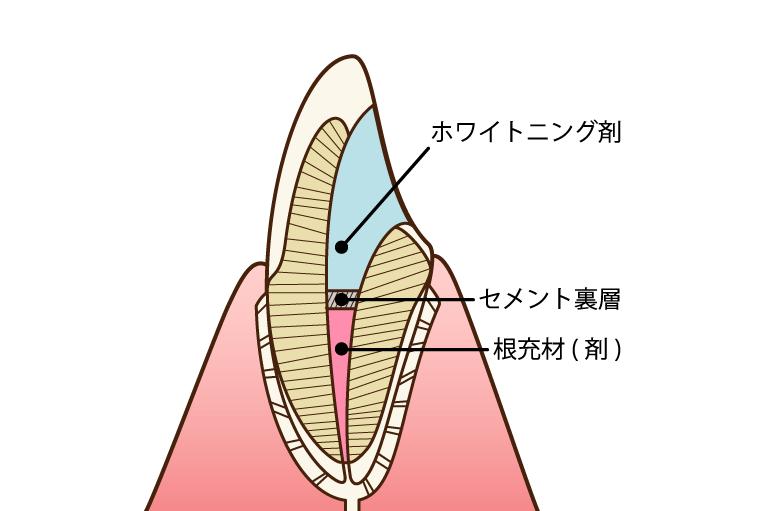 ウォーキングブリーチで歯の内側から漂白する