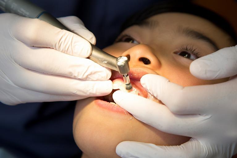 歯科医院でクリーニングを受ける