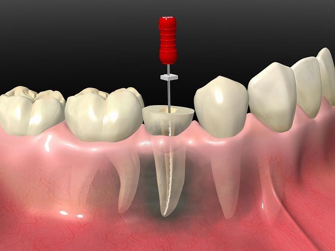 虫歯が進んで歯が根っこだけになってしまった・抜歯と言われた
