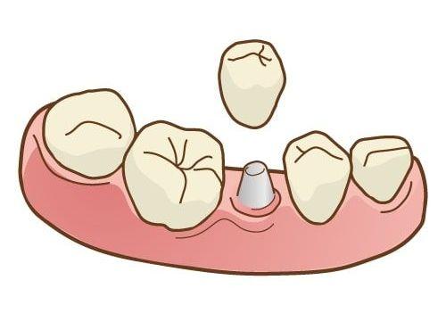 インプラントとブリッジ・入れ歯の違い