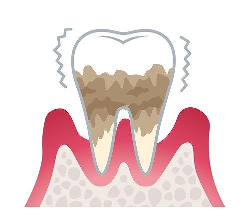 歯周病を放置してひどくなった