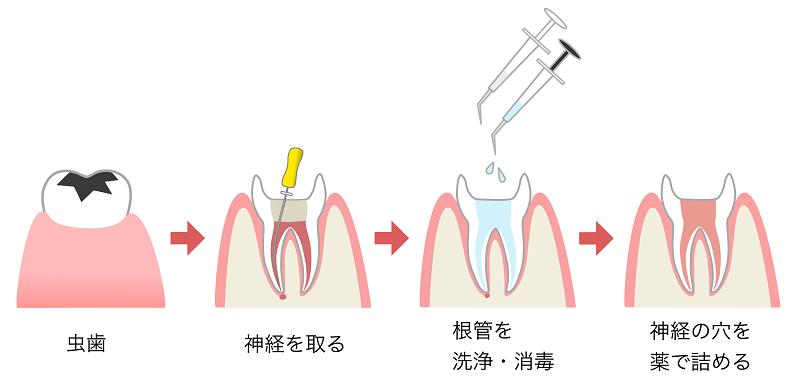 歯の神経の治療「根管治療」