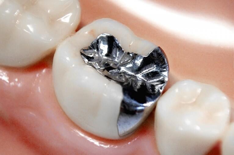 奥歯の銀歯と金属アレルギーについて
