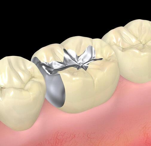 奥歯を銀歯にしたくない