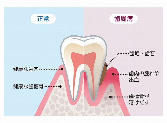 歯茎が赤く腫れている原因の多くは歯周病